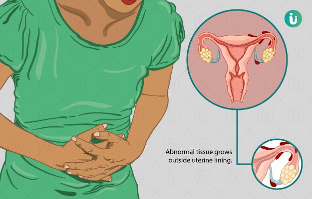 এন্ডোমেট্রিওসিস: নারীদের শারীরিক যন্ত্রণার মানসিক প্রভাব